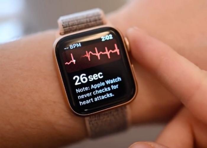 国行Apple Watch的心电图获批了 但功能恐怕没那么强大