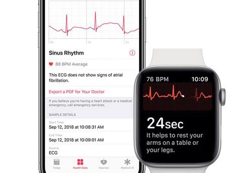 watchOS 5.1.2的正式版本将启用心电图功能