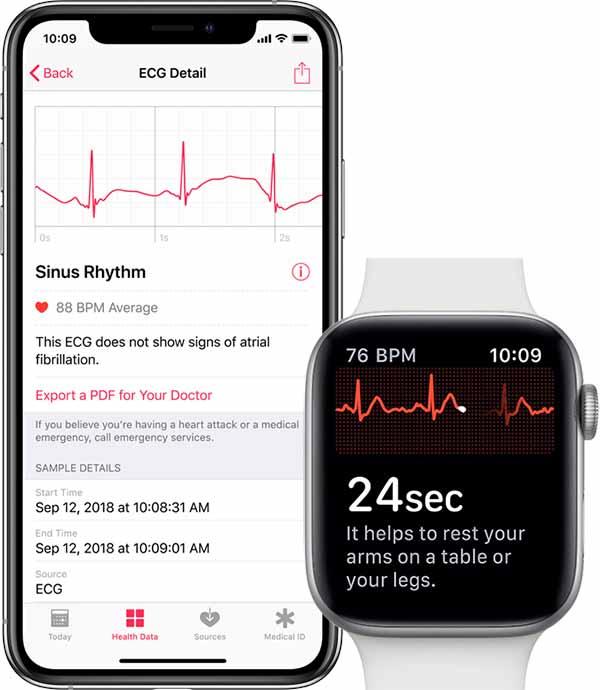 watchOS 5.1.2 发布!心电图 ECG 功能终于来了!