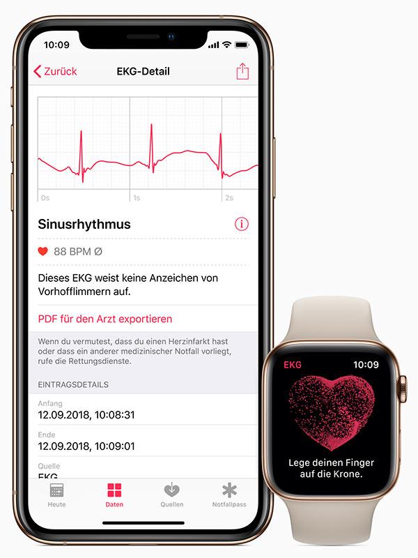 Apple Watch ECG 功能现已扩至 24 个国家和地区